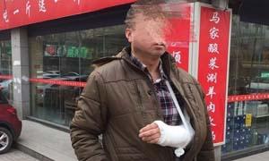 美团外卖送餐员被打骨折 晚到9分钟遭顾客拿棒球棍殴打